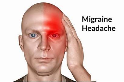 Những điều cần biết về bệnh đau nửa đầu